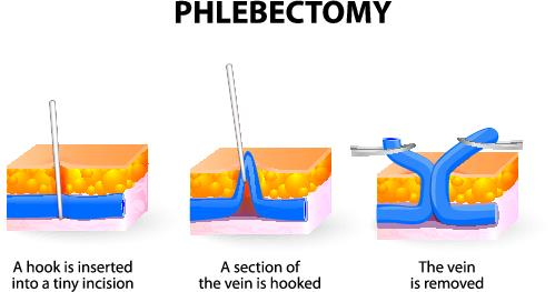Cpt Code For Stab Phlebectomy What If Less Than 10